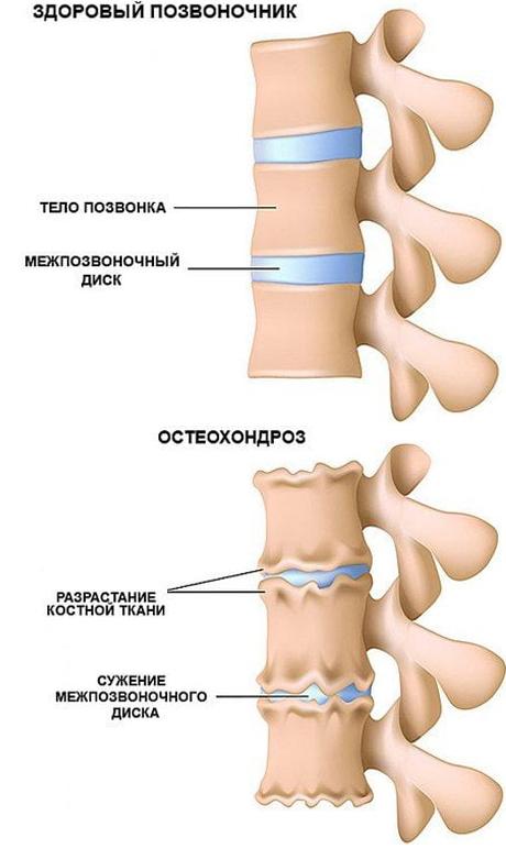 Остеохондроз лечение массажером кремы для кожи тела рук ног кожи всего тела